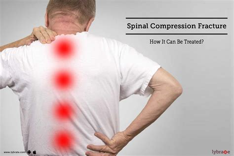 Spinal Compression Fracture - How It Can Be Treated? - By