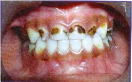 Early Childhood Caries or Nursing Bottle Tooth Decay