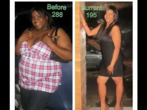 Before and After Gastric Sleeve Weight loss Journey