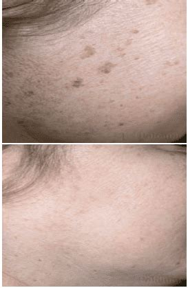 Pigmented Lesions in Brooklyn, NY | Dr